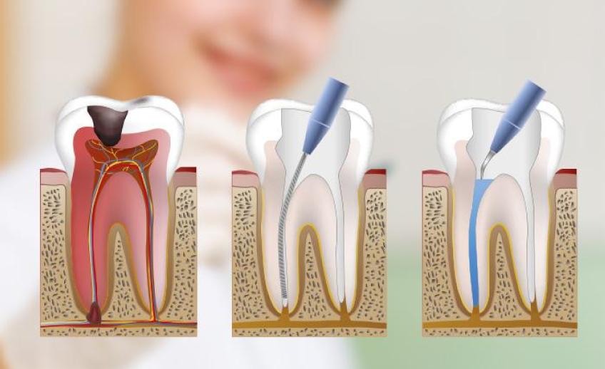 endodoncia getxo, dentista getxo