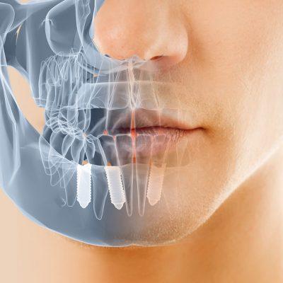 implantes dentales getxo, bilbao