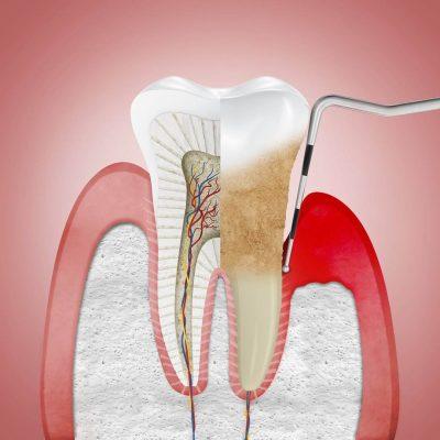 tratamiento-de-periodoncia