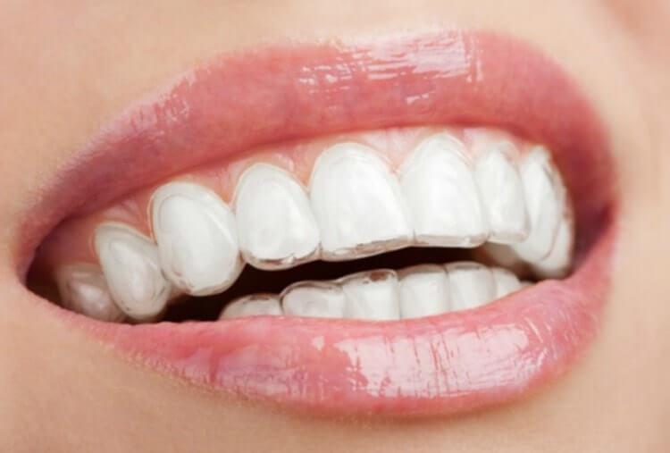 Blanqueamiento dental en casa con funda