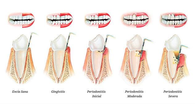 Fases de la enfermedad peridontal