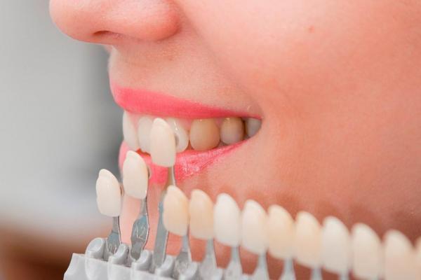 El composite dental en diferentes tonalidades