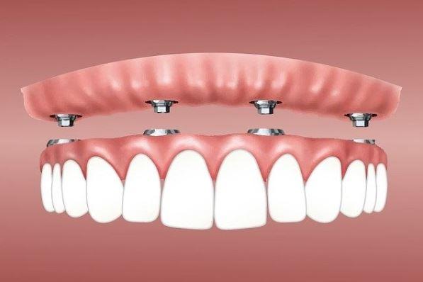 implante de una dentadura