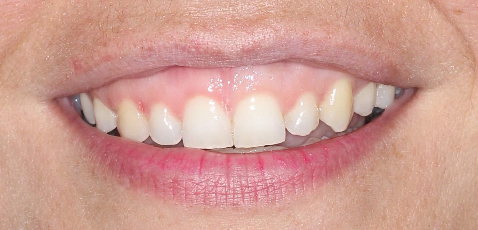 tratamiento de alargamiento de corona dental estética