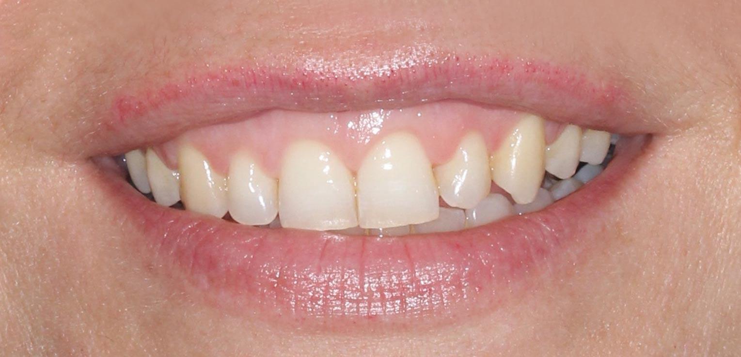 alargamiento de corona dental en getxo