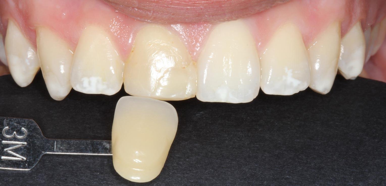 reconstruccion dental con composite