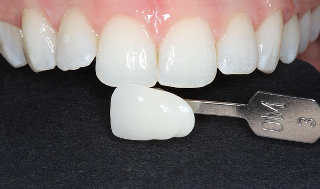 blanqueamiento dental externo domicialiario en getxo