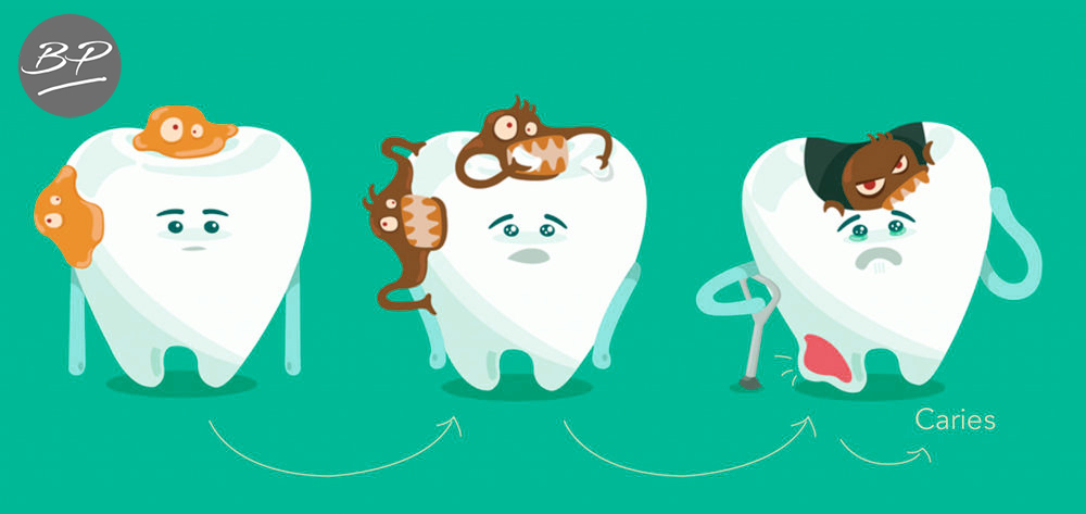 caries fases