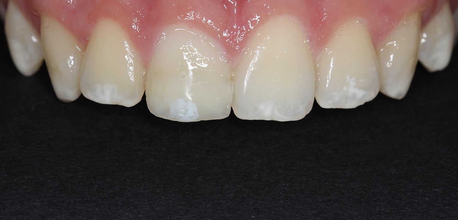 reconstruccion dental con composite en getxo