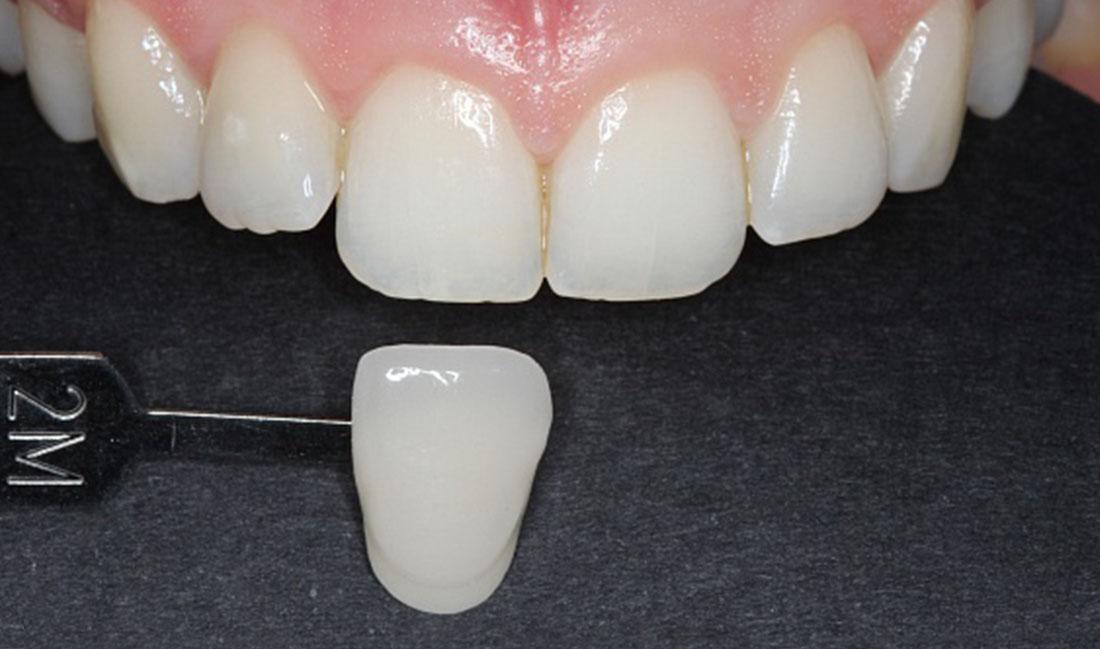 tratamiento de blanqueamiento dental en getxo