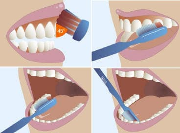 cómo cepillarte los dientes correctamente
