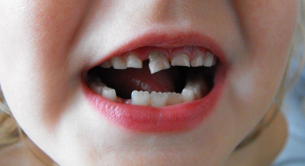 qué es un traumatismo dental