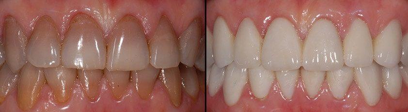 causas y tratamientos de los dientes oscurecidos