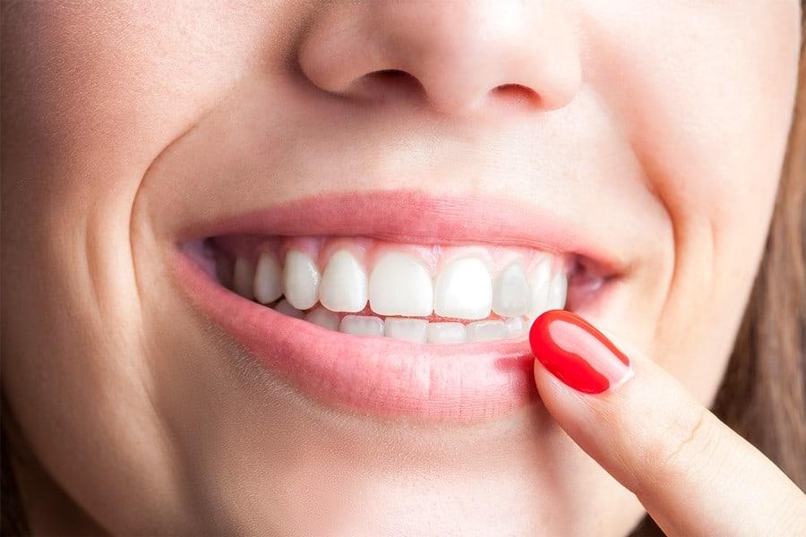 a qué se deben los dientes oscurecidos