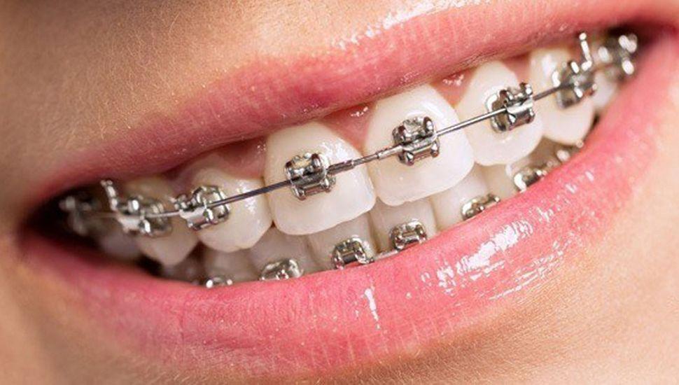 cuidados con ortodoncia