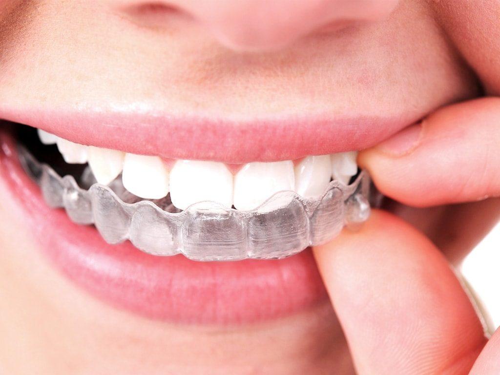Cuidados de los dientes con ortodoncia