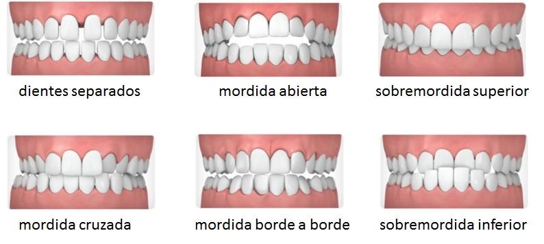 Tipos de maloclusión dental