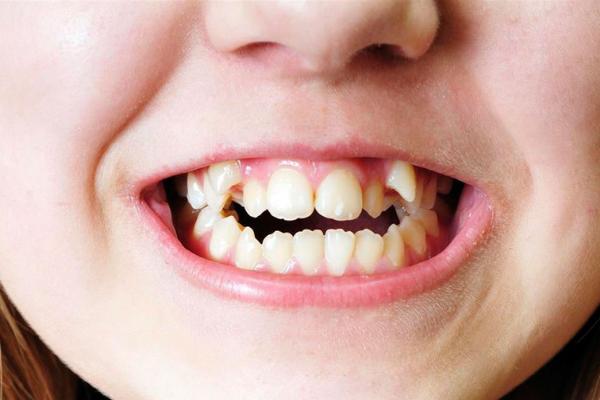 La maloclusión dental