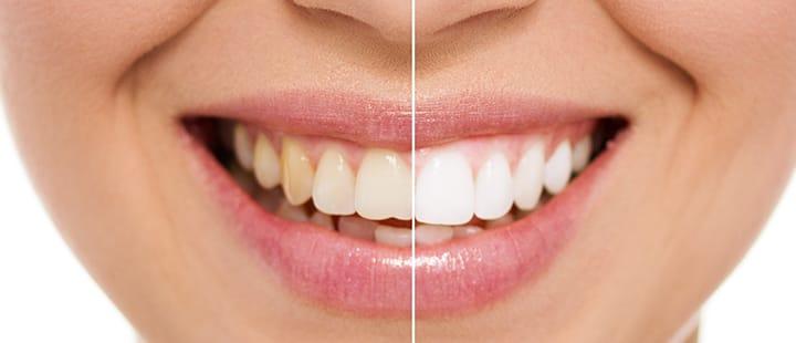 blanqueamiento dental clinica dientes blancos