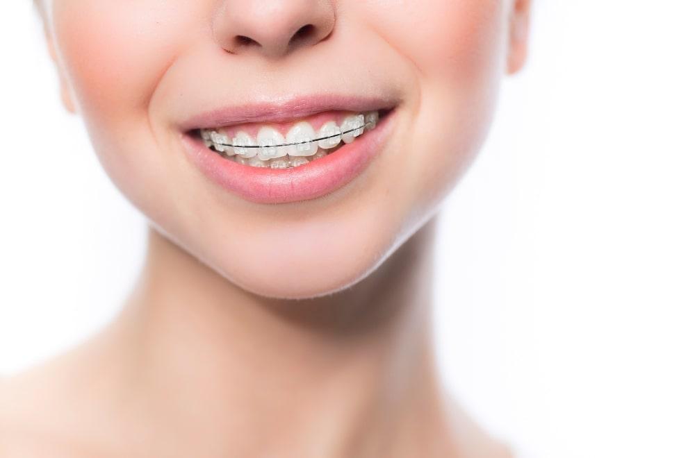 La ortodoncia convencional estética es uno de los tipos de brackets que usamos en Belén Pérez Dental