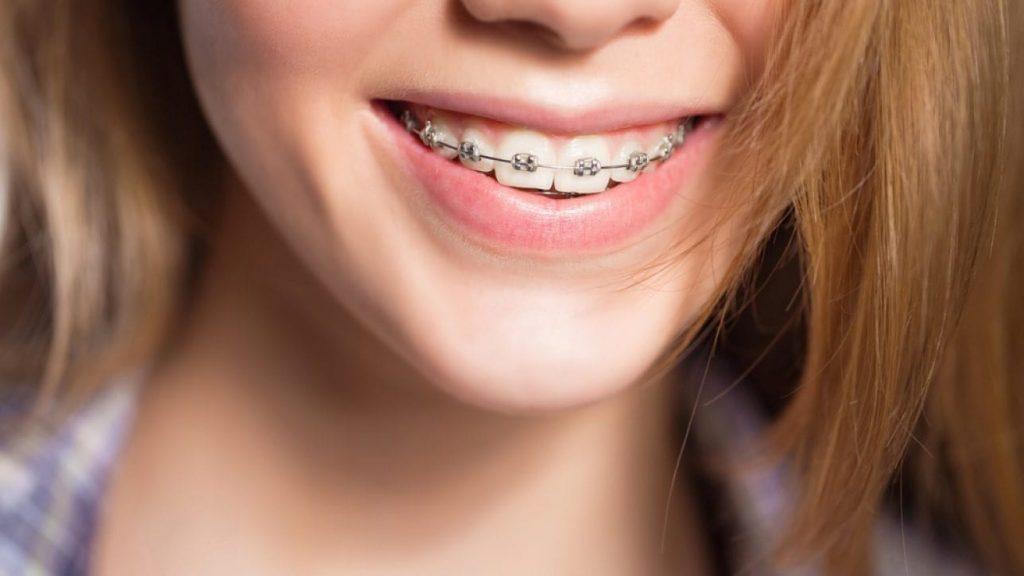 La ortodoncia convencional es uno de los tipos de brackets que usamos en Belén Pérez Dental