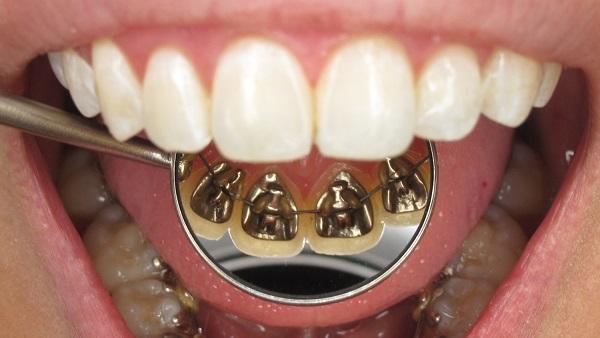 La ortodoncia lingual es uno de los tipos de brackets que usamos en Belén Pérez Dental