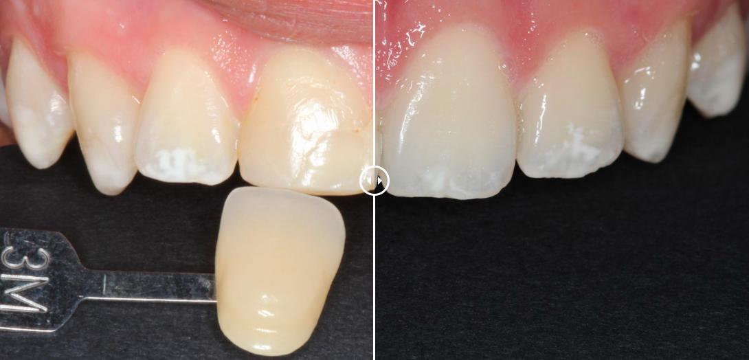 belen dental odontología conservadora