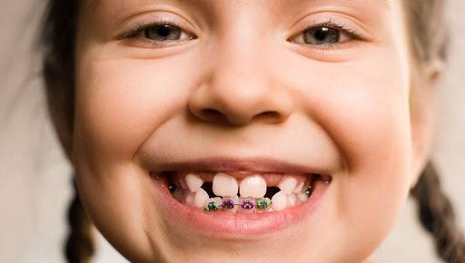 niña necesita ortodoncia