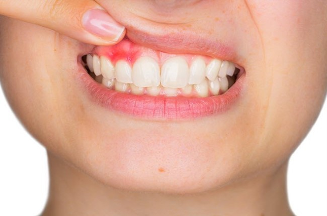 Absceso dental o flemón