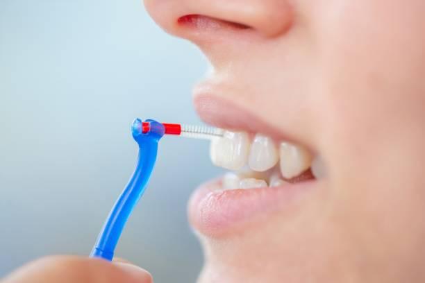 cepillo interproximal