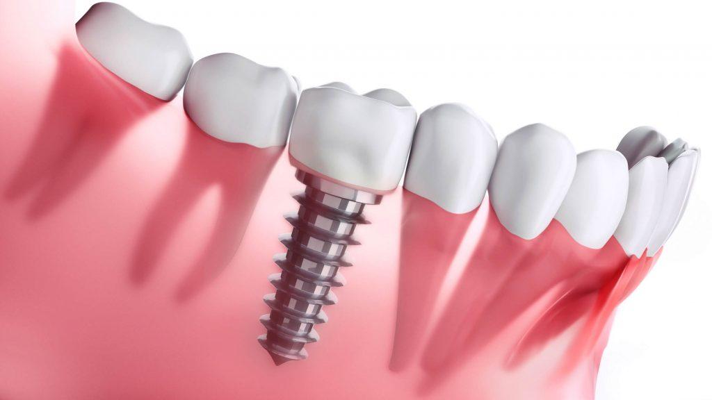 puentes dentales o implantes dentales